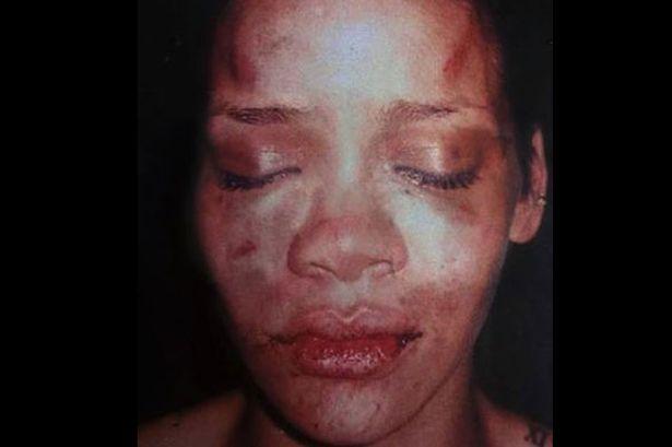 Rihanna battue par chris brown