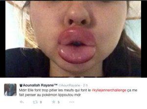 Une participante au Kylie Jenner Challenge