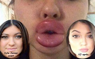 Kylie Jenner et ses levres